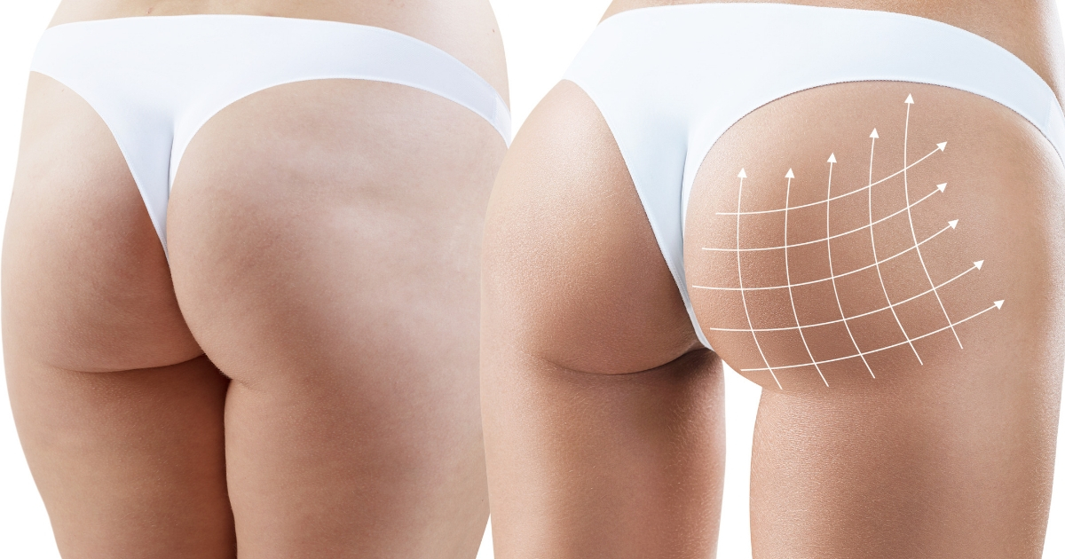 Buttock augmentation, or gluteal augmentation, is used to improve the contour, size and/or shape of the buttocks.
