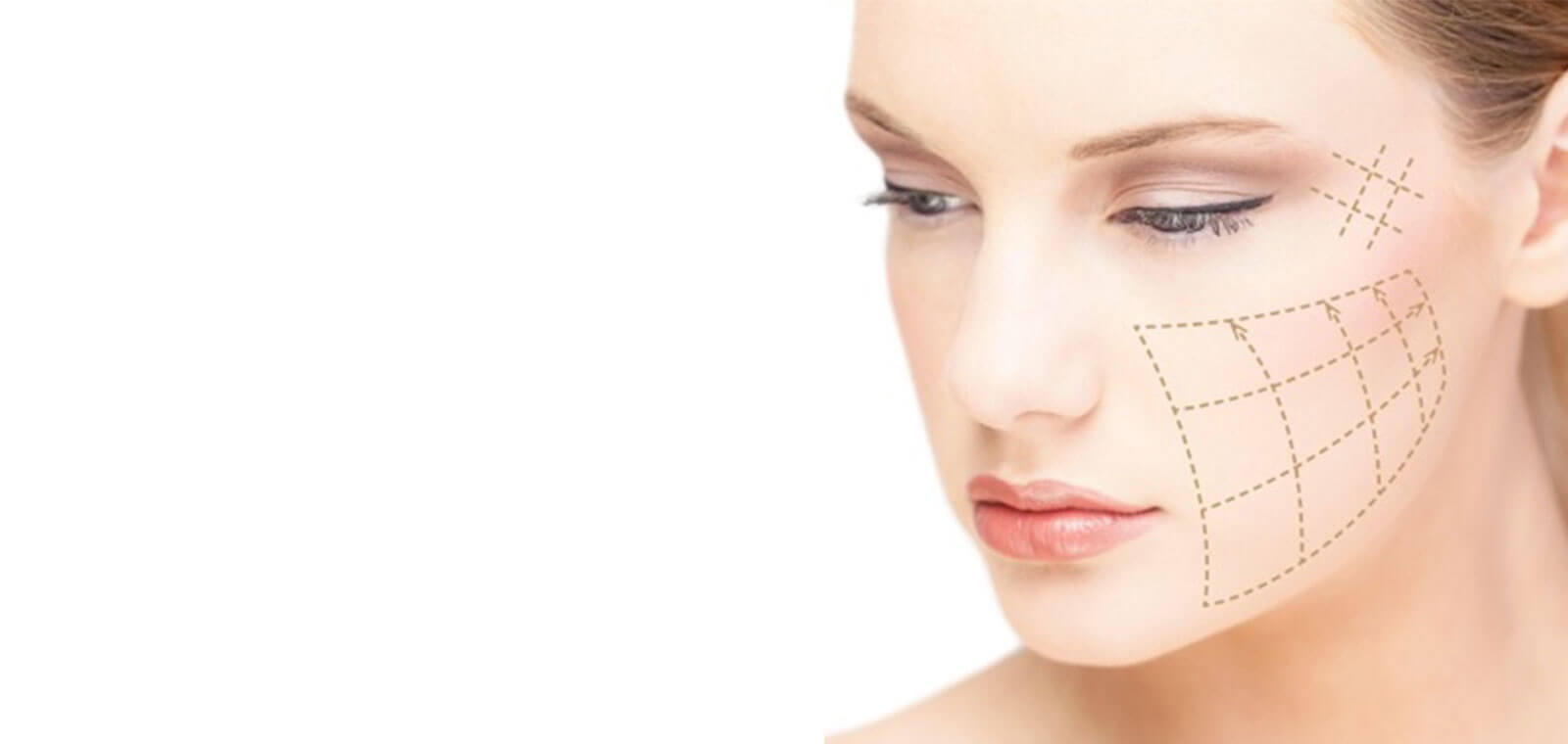Injectable lifting with yarns is a safe method which gives lifting results to loosened tissues avoiding surgery.