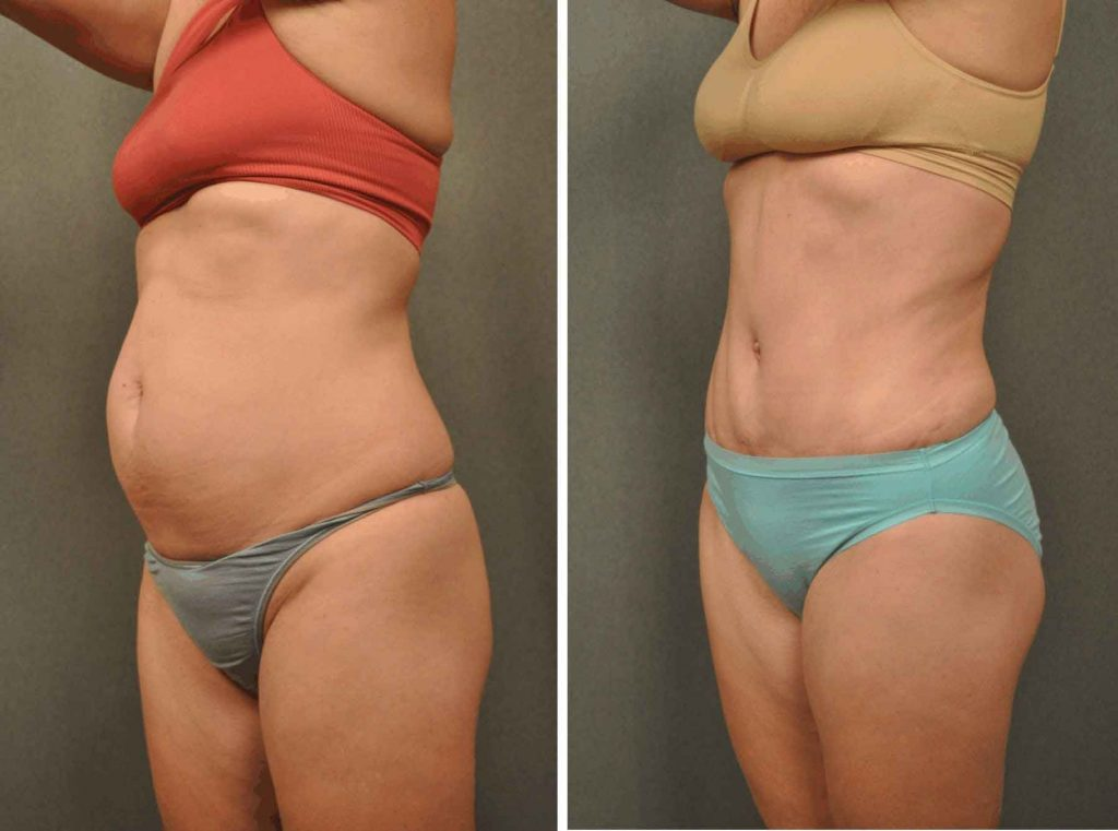 lipomatic,liposculpture, Brazilian butt, body shape, modeling, fat removal
