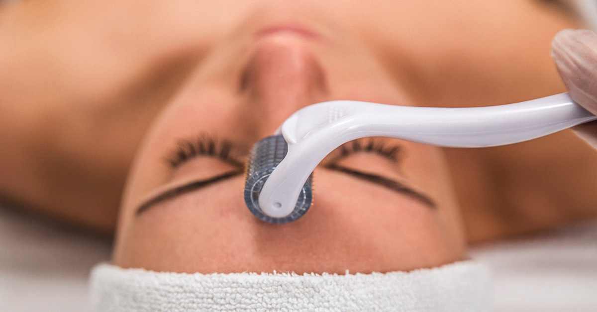 Collagen induction therapy (CIT), also known as Microneedling RF or skin needling, is a cosmetic procedure that involves repeatedly puncturing the skin hundreds of tiny, sterile needles (Microneedling the skin).