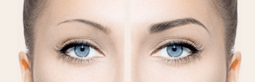 Micropigmentation, or permanent make up, is an innovative cosmetic procedure that enables both men and women to enhance the shape of their eyebrows, hairline, lips, eyes, and more